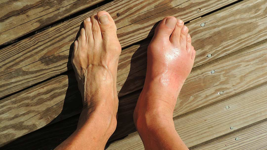 Common Medical Conditions Insoles Help Relieve